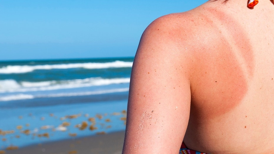 Even a single sunburn can increase a person's risk of skin cancer.