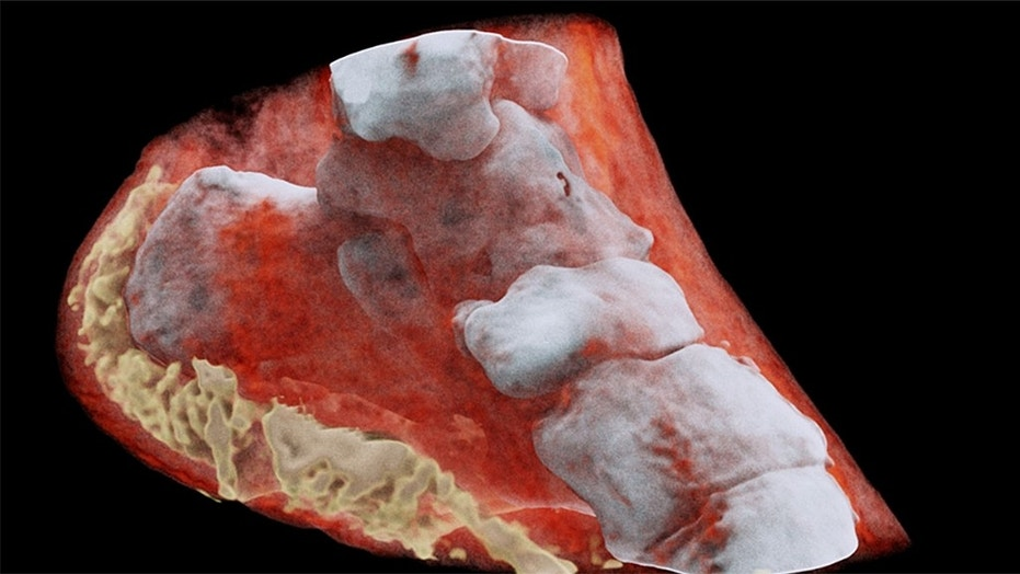 Scientists perform first-ever 3-D, colour X-ray on a human