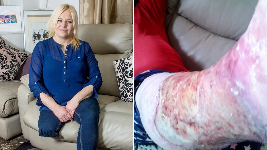 A woman who cut herself shaving got an infection so bad she had to have her leg amputated.
