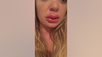 A mum is warning others about having lip fillers after she was left with infected, swollen lips following an injection.
