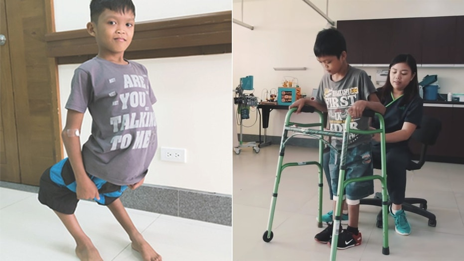 Aldrin, who was born with congenital knee dislocation, is learning how to walk after undergoing a 4-hour surgery to repair and realign his tendons, joints and bones.