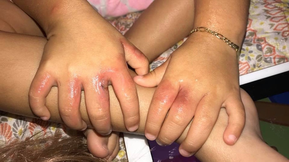 A toddler caught two bacterial infections after a birthday celebration at a Florida beach last weekend.