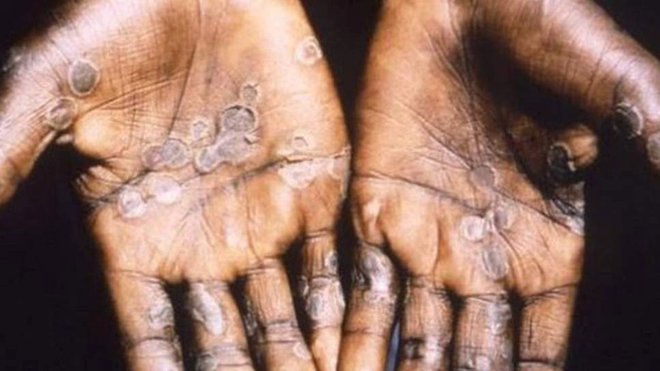 Monkeypox is considered mild and typically occurs in remote parts of central and west Africa.