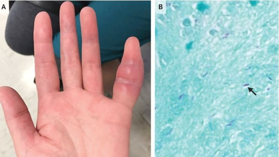 Woman's swollen pinkie was rare sign of tuberculosis