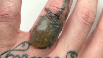 "A man was left startled as he began undergoing a laser removal procedure to get rid of a tattoo - and developed a huge BLISTER half an inch high on the tattoo area (Pictured). See SWNS story SWBLISTER; Andrew Milne, 32, set about having a tattoo of a rose removed from the third finger on his left hand - which had been tattooed there to cover up a former tattoo of his ex-wife's initials. But after just his second laser session on Friday (Sept 21), Andrew was alarmed to wake up the following morning and find a huge, tough blister covering the tattoo. Andrew, a fashion account manager from Northamptonshire, said: ""It was quite alarming. ""When I went to bed on Friday night the skin was slightly raised, about a couple of millimetres, which is quite normal after the first couple of laser sessions. ""But then I woke up on Saturday morning and it had really come up. It's about an inch long and half an inch high, and it seems to be quite tough."""