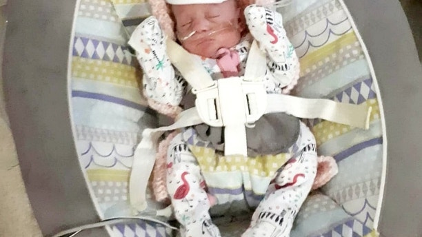 "A ""miracle"" baby born four months premature has survived against the odds despite weighing less than a bag of sugar and wearing nappies smaller than a credit card.  See ROSS PARRY story RPYMIRACLE.  Terrified mum Kenya Jade Latimer was rushed to hospital by her partner Ashley, 29 when she began experiencing labour pains in April – at just 24 weeks.  After hours in labour, tiny Elsie was born on April 3rd weighing just 1lb 10oz and was smaller than her mother's palm.  The 21-year-old recalled the moment she first saw her baby daughter: ""She was so tiny. It was surreal and I was in shock. Everything happened so fast."