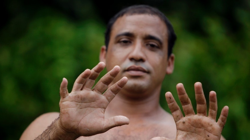 "In this photo taken Wednesday Aug. 24, 2011,  Yoandri Hernandez Garrido, 37, known as ""Twenty-Four"" shows his 12 fingers in Baracoa, Guantanamo province, Cuba.  Hernandez is proud of his extra digits and calls them a blessing, saying they set him apart and enable him to make a living by scrambling up palm trees to cut coconuts and posing for photographs in this eastern Cuban city popular with tourists.  Known as polydactyly, Hernandez's condition is relatively common, but it's rare for the extra digits to be so perfect. (AP Photo/Javier Galeano)"