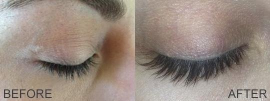 Will You Get Longer, Darker Lashes with Latisse?