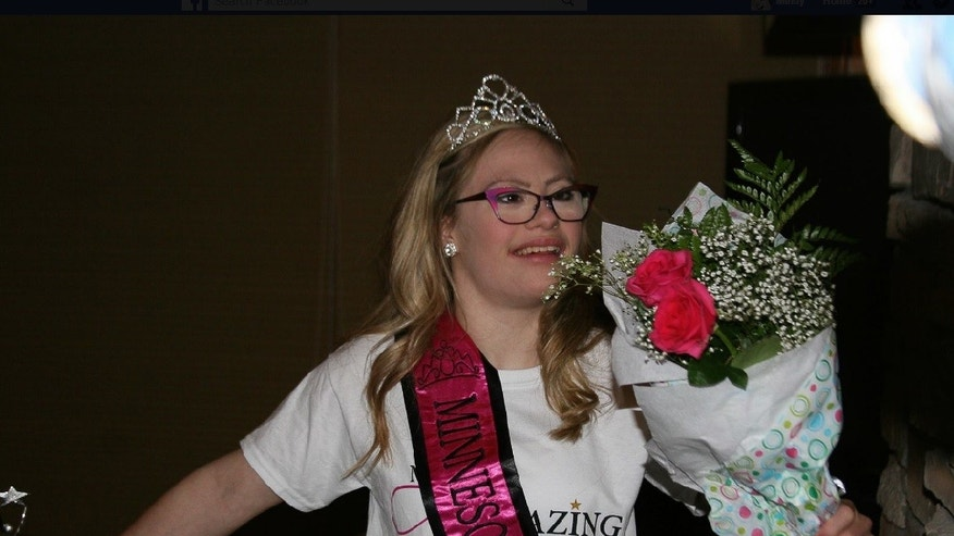 Mikayla Holmgren, 22, is a seasoned performer. She already won the Minnesota Miss Amazing pageant, which focuses on showcasing the talents of women with special needs, in 2015, and now, she is preparing to compete in the Miss Minnesota USA pageant in November.
