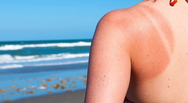 Young woman with sunburned shoulder at the beach