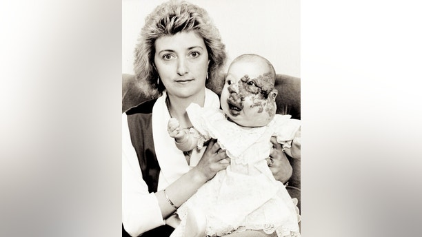 "COLLECT - Cody Hall with her mum Theresa when she was a child.  See NTI story NTIFACE.  A brave woman who stole the hearts of the nation when she was born with a severe facial deformity has got married - proudly telling guests: ""There is a happy ending.""  Cody Hall's birthmark was so large it distorted the left side of her face and doctors told her distraught family there was nothing they could do until she was six.  Her parents refused to be defeated and researched their daughter's condition before finding out about a surgeon in America who operated on children with severe facial deformities.  They launched an appeal which raised £230,000, and Cody was sent to Roosevelt Hospital in New York for her first treatment in 1993, when she was just one.  Cody had a further 18 operations over the next 14 years, including facelifts, rhinoplasty, skin grafts, liposuction, dermabrasion, eye surgery and laser surgery.  Last Friday (10/11), Cody, now aged 25, tied the knot with Lewis Holt, 27, at St Michael's Church in Great Oakley, Northants."