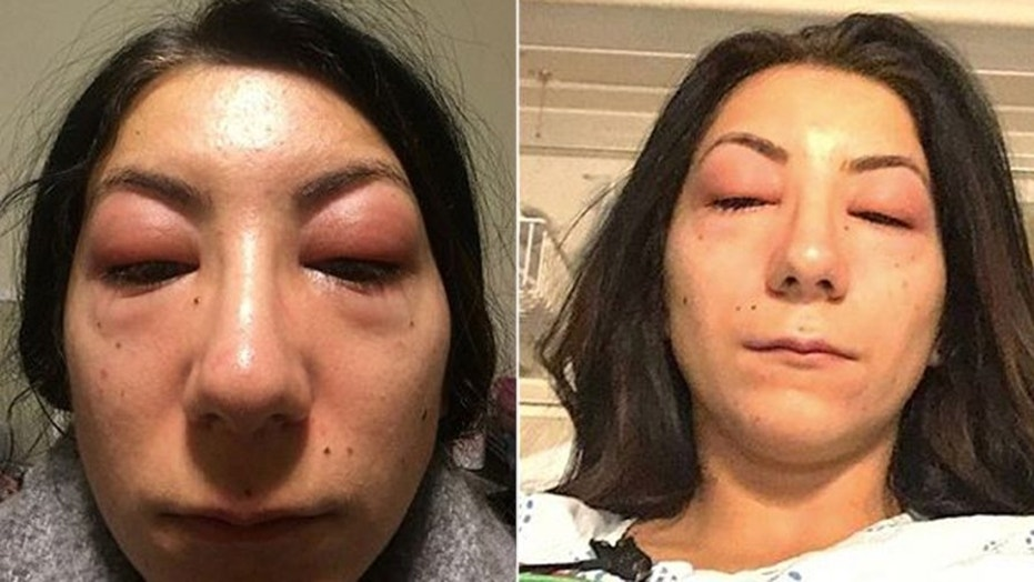 A Canadian woman is warning others about the potential dangers of eyelash extensions after developing a severe allergic reaction to the adhesive used.