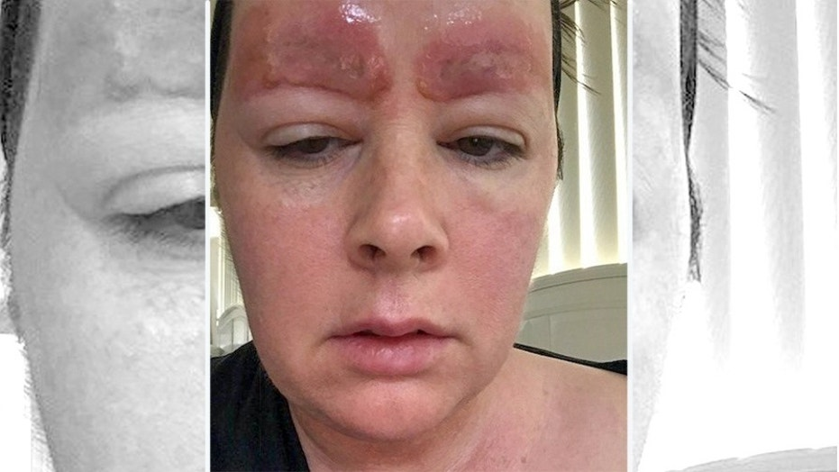 Amanda Coates is being sued by the clinic that did her eyebrow tattoos, which she claims caused a terrible reaction.