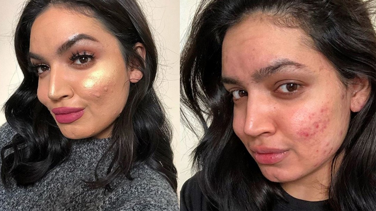 Beauty blogger dropped from L'Oréal campaign for acne