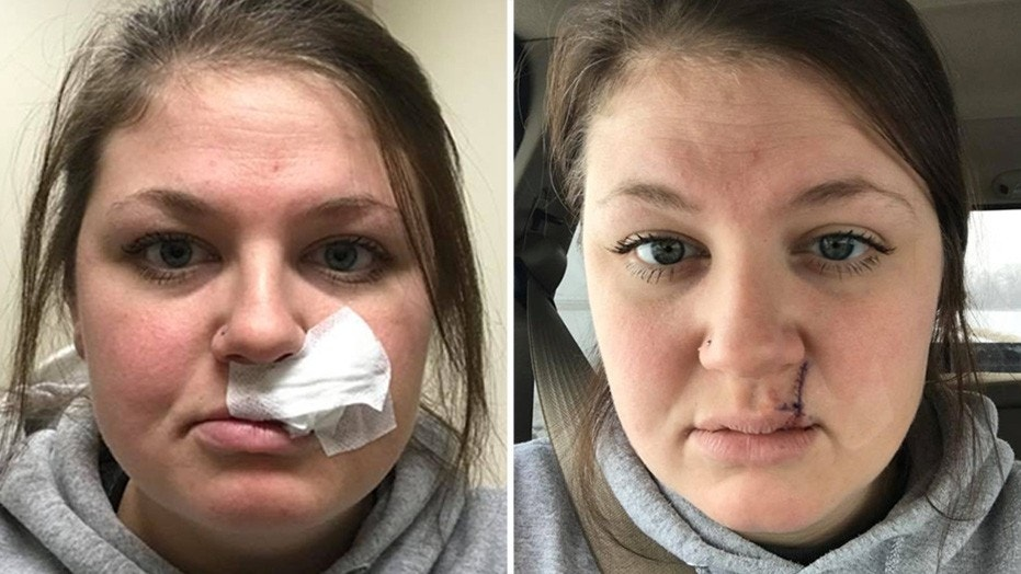 The mom of two took to Facebook with a critical skincare message.