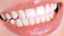 Close up of a smiling young woman's teeth with diamond - a series of DENTAL images.