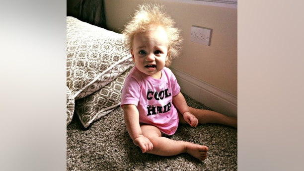 "A baby girl has been diagnosed with an ultra-rare condition which means her gravity-defying hair is literally impossible to tame. See SWNS story NYHAIR; Taylor McGowan (pictured), 17 months, is one of just a handful of kids around the world with a known case of Uncombable Hair Syndrome. It causes her bright white hair to stand on end despite efforts by her parents Cara and Tom McGowan - who both have straight brown hair - to brush and style it. The adorable tot attracts crowds wherever she goes and former mental health worker Cara, 32, says she is stopped ""nine or ten times"" on a trip to the shops. While most people are friendly, Cara says she has been accused of bleaching Taylor's messy mane and asked whether she ""stuck her fingers in a light socket"". But the family love her unique look and have nicknamed her 'Einstein 2.0' after the scientist, whose shock of static white hair is also rumored to have been caused by UHS. Full-time mom Cara, who lives in a suburb of Chicago in Illinois, US, said: ""At first we thought we would just put a bit of water and comb it down, but it pops back up. ""I didn't want to put a bunch of chemicals on her hair and I had read that aloe vera gel would act like hair gel."