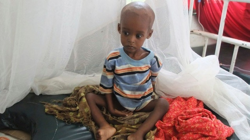 FILE -- A malnourished child from southern Somalia sits on a bed at Banadir hospital in Mogadishu.