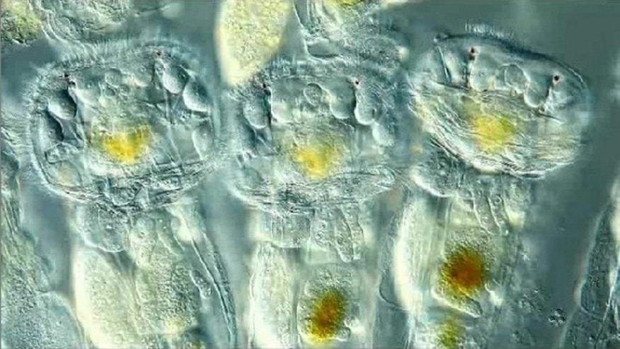 A screen-grab from the 1st-prize video of wiggling rotifers