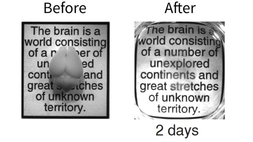 A combination of photos of an intact adult mouse brain before and after the two-day CLARITY process, which permits a comprehensive and exquisitely detailed view of their inner structures.