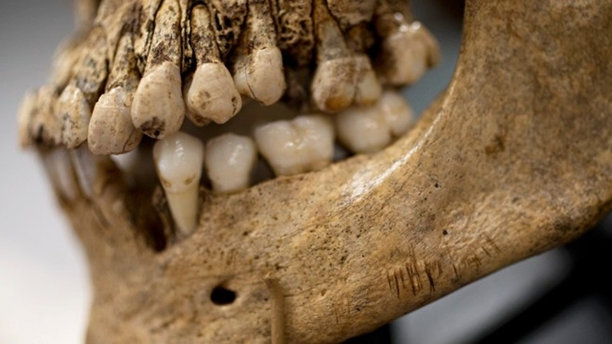 "May 1, 2013: Numerous small knife cuts and punctures in the mandible of  ""Jane of Jamestown"" are seen during a news conference at the Smithsonian's National Museum of Natural History in Washington."