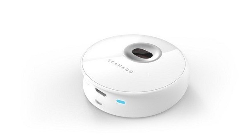 Scanadu hopes to make their Scanadu Scout the first working medical tricorder. Scanadu is a participant in the Qualcomm Tricorder X PRIZE competition. File photo undated.