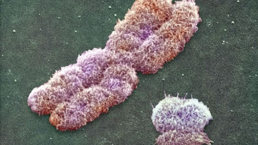 Human sex-determining chromosomes: X chromosome (left) and the much smaller Y chromosome.