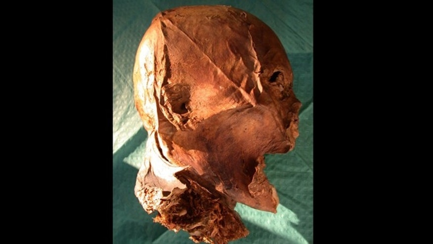 French King Henry IV's embalmed head -- or is it?