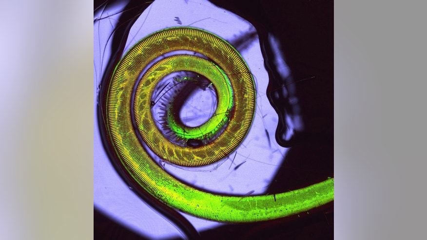 Miley Cyrus has nothing on this butterfly. Here the insect's coiled tongue seen with 60-times magnification by Kata Kenesei and Barbara Orsolits of the Institute of Experimental Medicine - Hungarian Academy of Sciences.