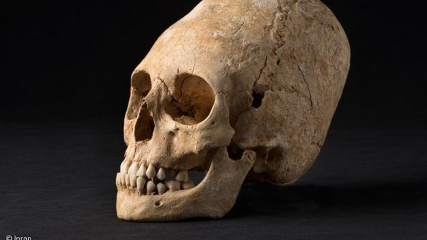 A woman's deformed skull was found in one of the tombs, which dates to around 1,650 years ago.