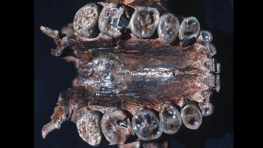 Palate and maxillary teeth of Paranthropus boisei (OH 5).