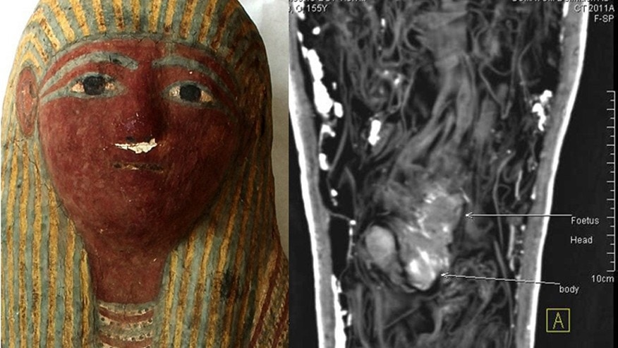 The mummy mask and the CT scan showing the fetus.