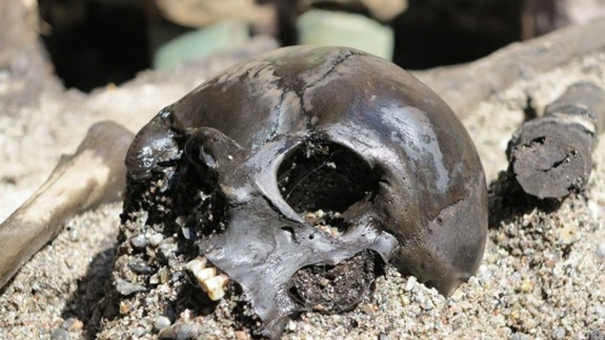 A skull of an Iron Age warrior discovered in a bog in Denmark shows signs of battle.