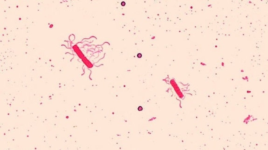 A Bacillus species with evident flagella, the whiplike tails many microbes use to move around.