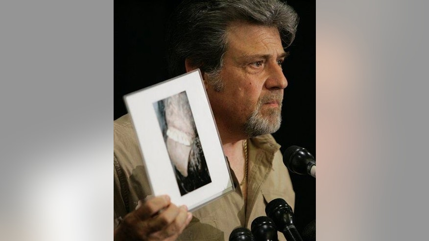 Bigfoot hunter Tom Biscardi holds a photo of what he claims to be the mouth and teeth of a deceased Bigfoot. It turned out to be a monkey suit.