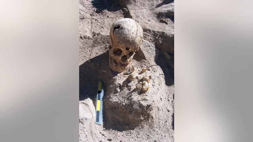 A burial of a young woman found in the middle of a tomb. Analysis of her skeletal remains reveal that she suffered dental problems, including tooth loss. At one point in her life she suffered an internal hemorrhage in the meninges of her cranium.