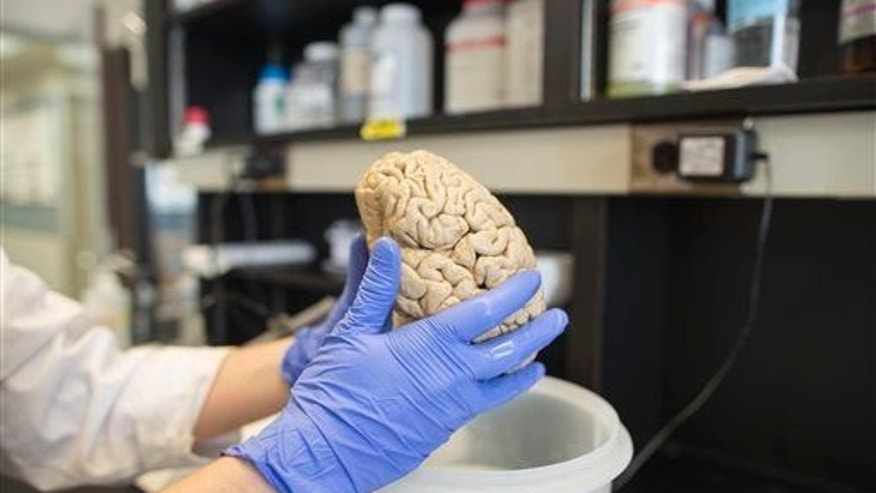 A human brain in a laboratory at Northwestern University's cognitive neurology and Alzheimer's disease center in Chicago.