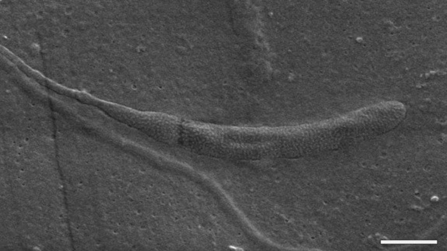 A scanning electron micrograph of the 50-million-year-old fossilized sperm. (Scale bar is equal to 1 micron.)