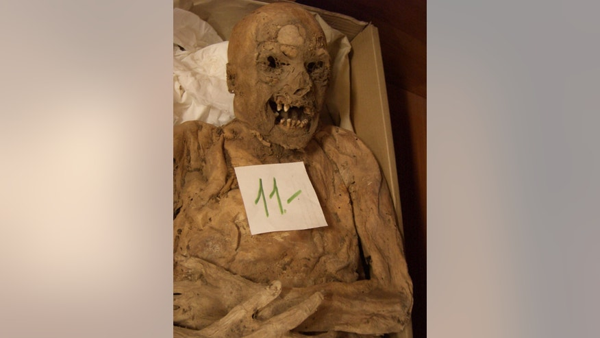 A Hungarian mummy's genes is helping scientists better understand the causes of colorrectal cancer. (Tel Aviv University)