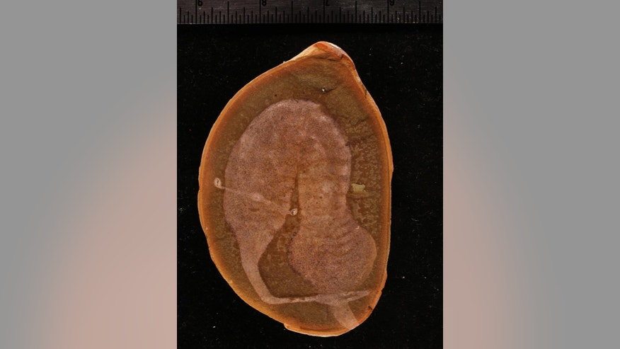This undated photo provided by The Field Museum in Chicago shows a fossil of a Tully monster. The Tully monster, an oddly configured sea creature with teeth at the end of a narrow, trunk-like extension of its head and eyes that perch on either side of a long, rigid bar, has finally been identified. Fossil hunters have been finding samples of Illinois' state fossil in the Mazon Creek area for decades but no one has ever been able to say exactly what a Tully monster is. That changes Thursday, March 17, 2016, with the publication of a paper in the journal Nature. (Paul Mayer/The Field Museum via AP)