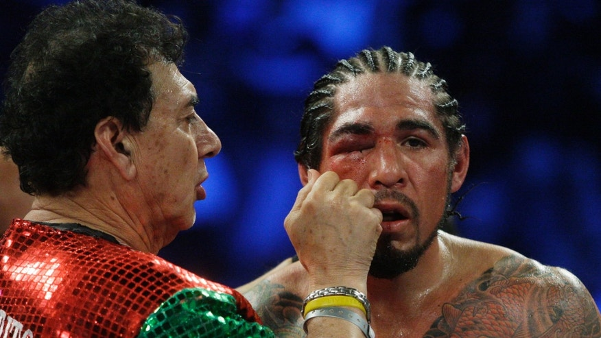 Antonio Margarito, of Mexico, reacts as his eye is worked on after the ninth round of an WBA World Junior Middleweight Championship boxing match against Miguel Cotto, of Puerto Rico, Sunday, Dec. 4, 2011  in New York. Cotto defeated Margarito with a TKO decision amid confusion in the corner before they came out for the 10th round. (AP Photo/Frank Franklin II)