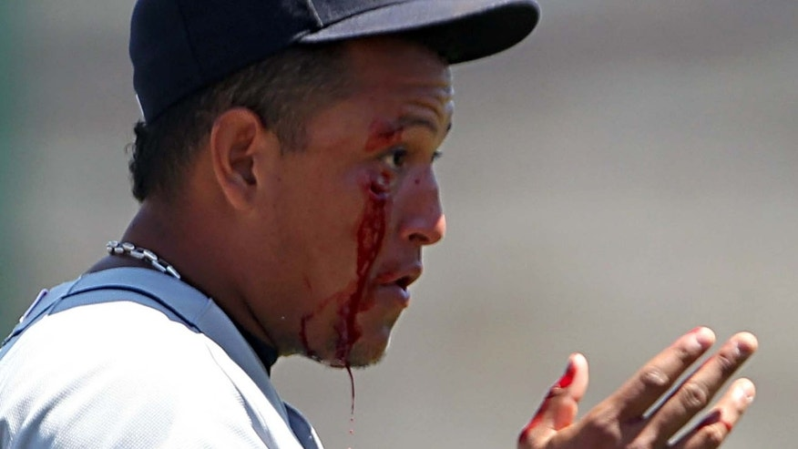 Detroit Tigers third baseman Miguel Cabrera after he was hit in the face by a grounder May 19th.