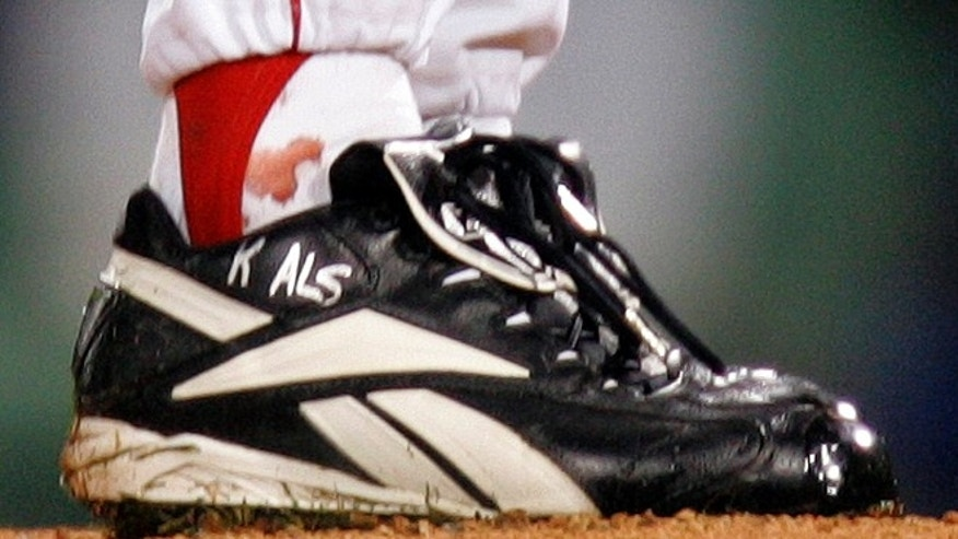 Oct. 24, 2004: This file photo shows blood around the ankle of Boston Red Sox pitcher Curt Schilling during the first inning of Game 2 of the World Series in Boston.