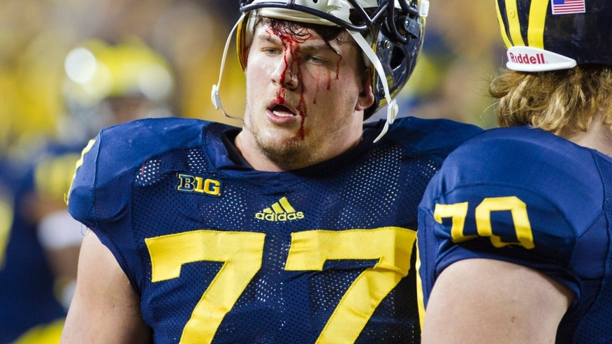 Michigan offensive lineman Taylor Lewan (77) walks off the field, blood running down his face, in the third quarter of an NCAA college football game against Nebraska in Ann Arbor, Mich., Saturday, Nov. 9, 2013. Nebraska won 17-13. (AP Photo/Tony Ding)