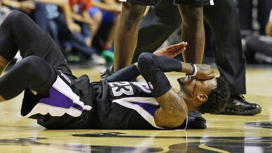Blood runs down the face of Sacramento Kings guard Ben McLemore after he collided with a Los Angeles Lakers player during an NBA preseason basketball game Friday, Oct. 24, 2014, in Las Vegas. The Kings won 93-92. (AP Photo/John Locher)