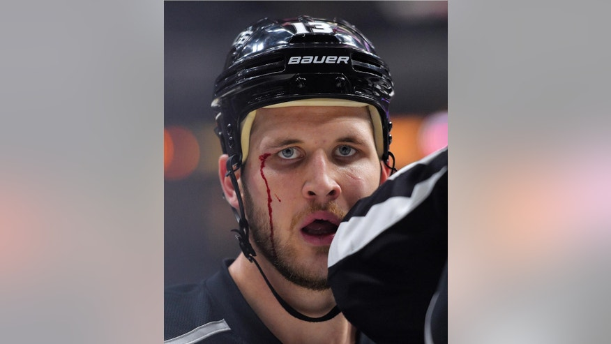 Los Angeles Kings left wing Kyle Clifford looks toward a camera after a scuffle with the Anaheim Ducks uring the second period of an NHL hockey game, Saturday, Jan. 17, 2015, in Los Angeles. (AP Photo/Mark J. Terrill)