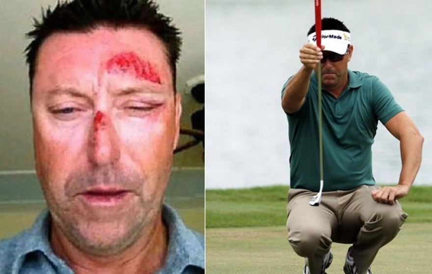 A photo Allenby tweeted following the incident shows facial injuries. He has pulled out of his next tournament. (Twitter, AP)