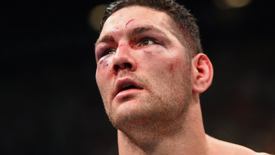 LAS VEGAS, NV - DECEMBER 12: Chris Weidman reacts to his loss to Luke Rockhold in their UFC middleweight championship bout during the UFC 194 event inside MGM Grand Garden Arena on December 12, 2015 in Las Vegas, Nevada. (Photo by Josh Hedges/Zuffa LLC/Zuffa LLC via Getty Images)
