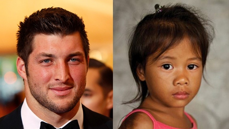Tim Tebow's foundation changed the life of Jocy, a burn victim from the Philippines.