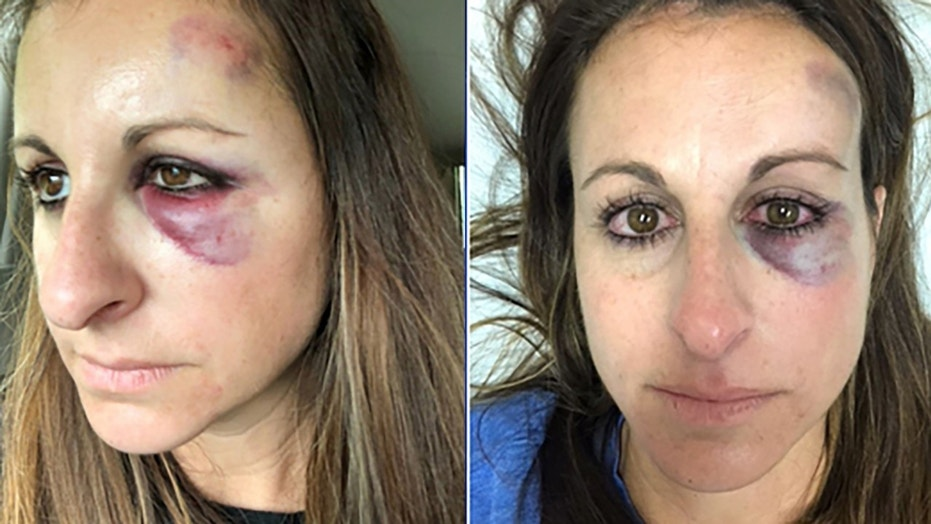Sabrina Pattie was hit in the face by a puck at a Tampa Bay Lightning playoff game.